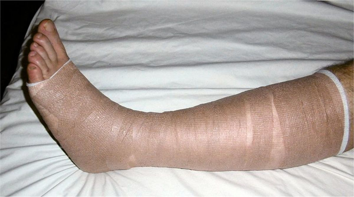 Leg bandages covered by a compression bandage.