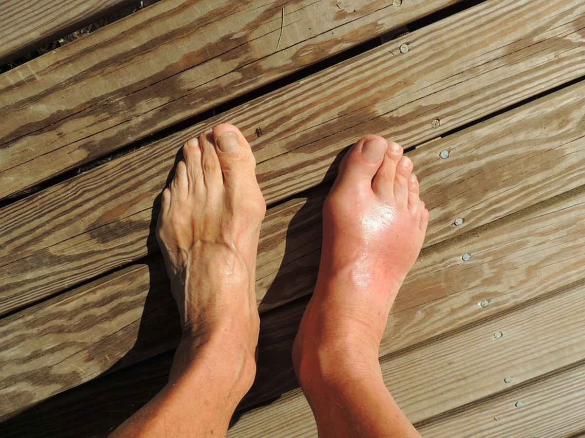 This foot is swollen because of gout, a form of arthritis. For recurring swelling, see a physician.