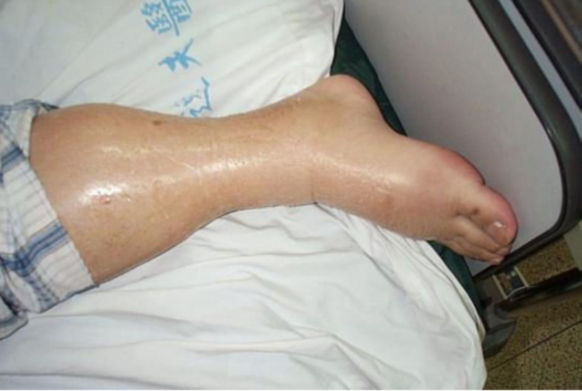 A case of lower leg and foot edema. The skin often stretches and can become shiny, as we can see in this case.