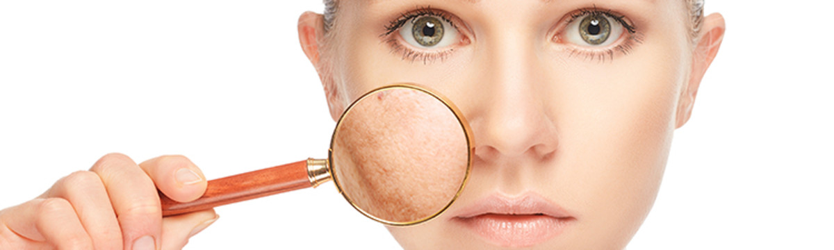 rosacea-causes-conditions-cautions-and-control