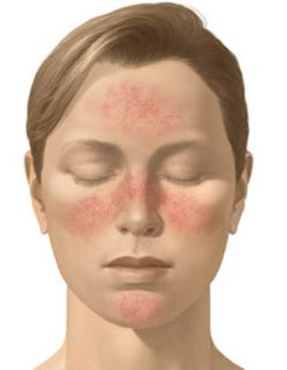 Rosacea typical distribution on the face