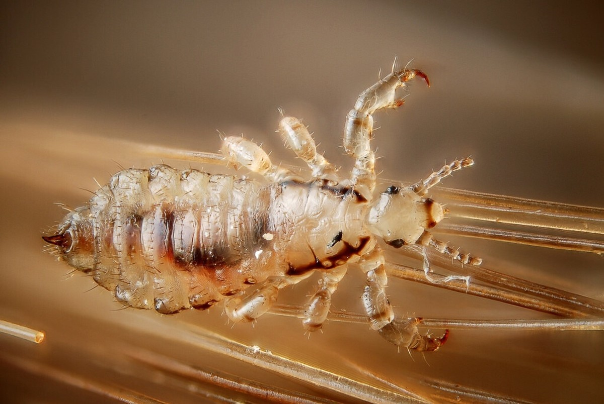 The head louse belongs to the same species as the body louse but is classified in a different subspecies.
