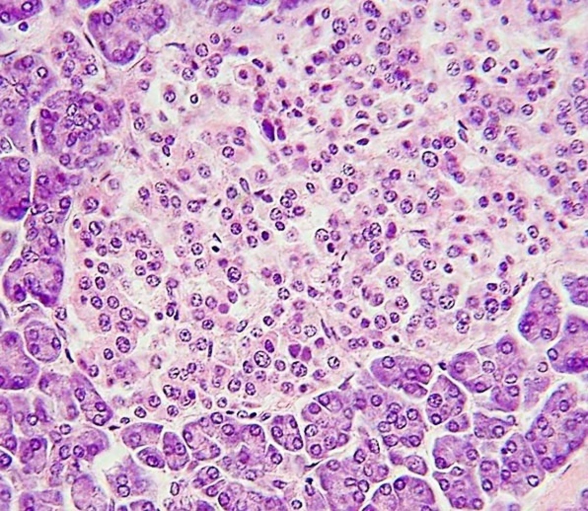 A pancreatic islet (lighter stain) surrounded by acini (darker stain)