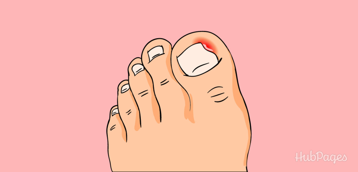 An ingrown toenail occurs when the nail begins to grow underneath the skin.
