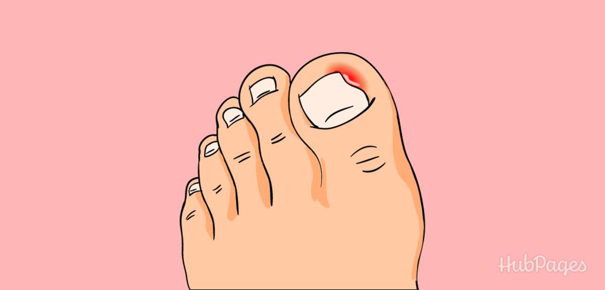 An ingrown toenail occurs when the nail begins to grow underneath the skin.