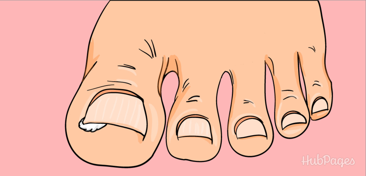 After soaking your ingrown toenail in hot water, place a piece of cotton underneath the edge that is ingrown so that the nail will begin to grow above the skin.