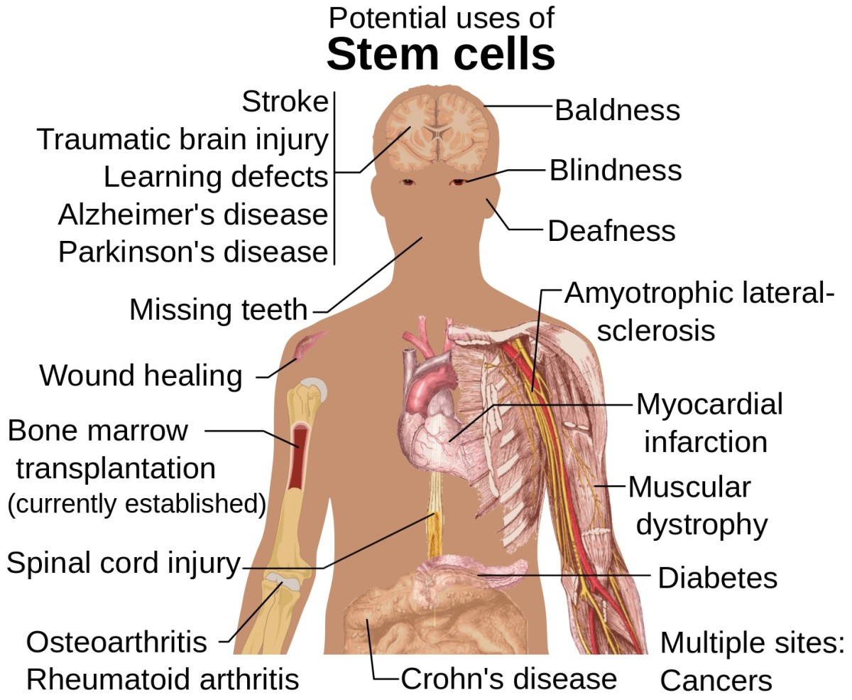 Stem cells may one day be used to treat amyotrophic lateral sclerosis and some other serious diseases.