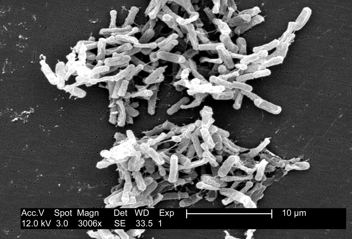 Clostridium difficile cells