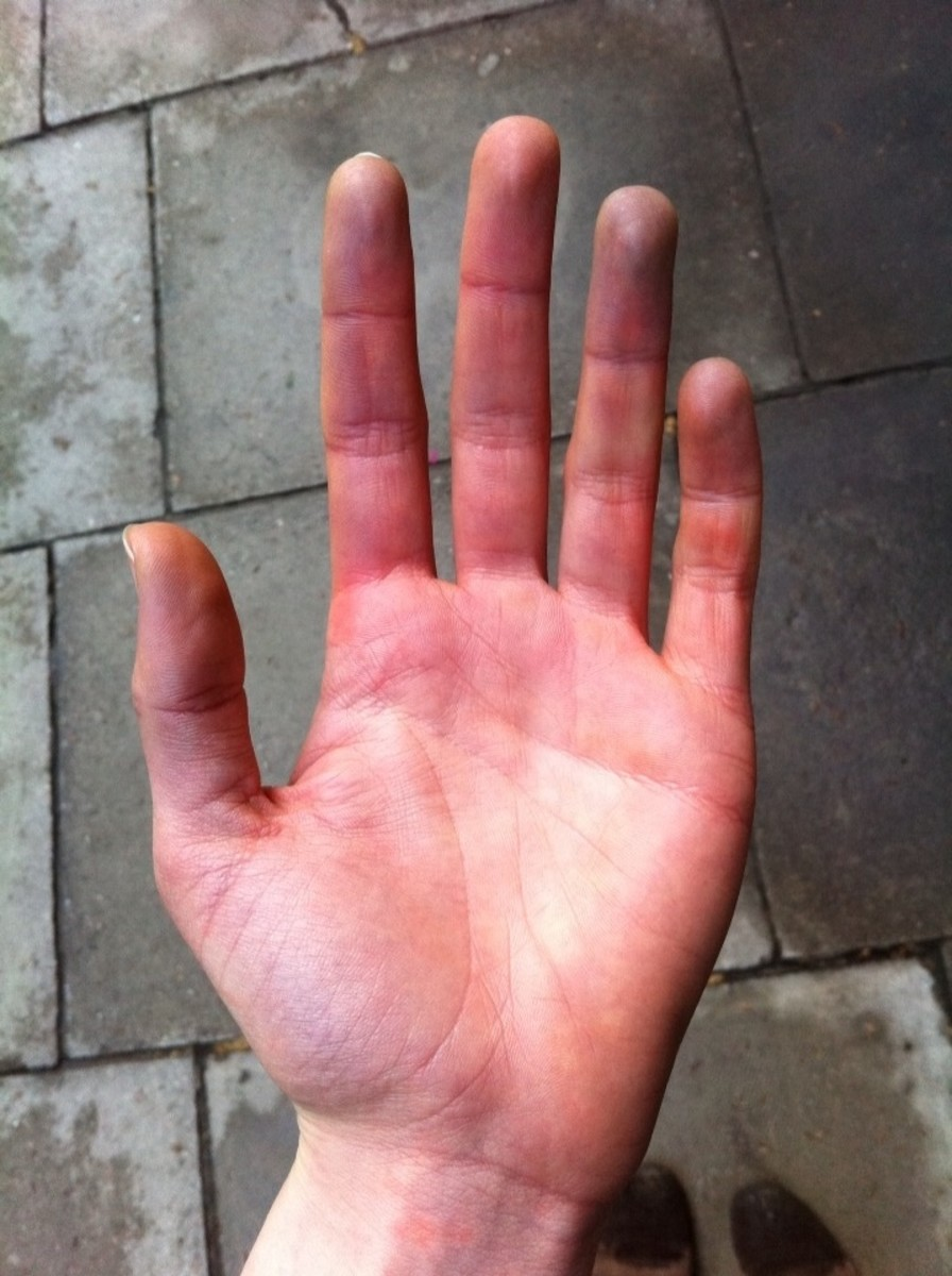 purple veins on hands