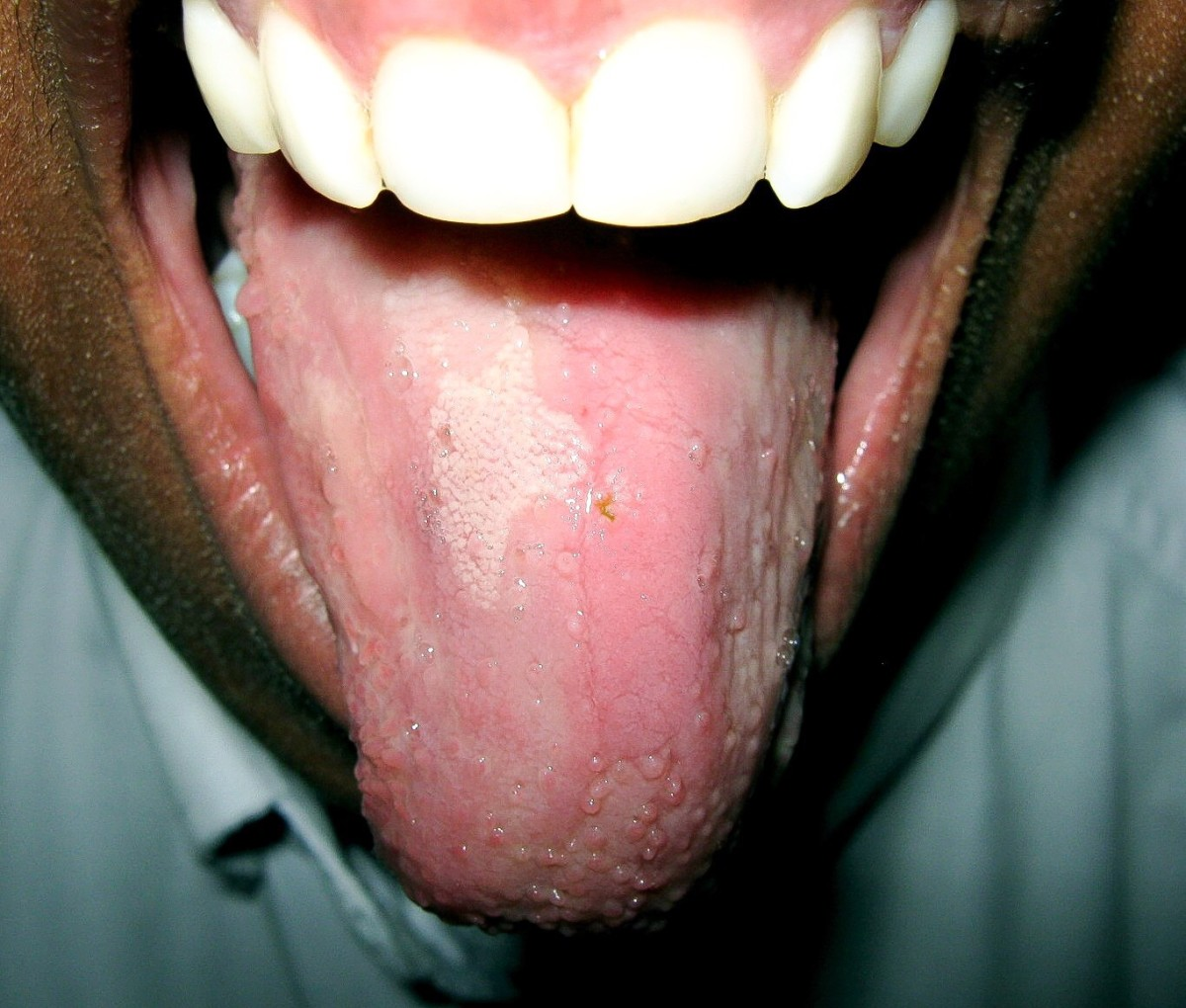 Glossitis involves inflammation and loss of papillae on the tongue.