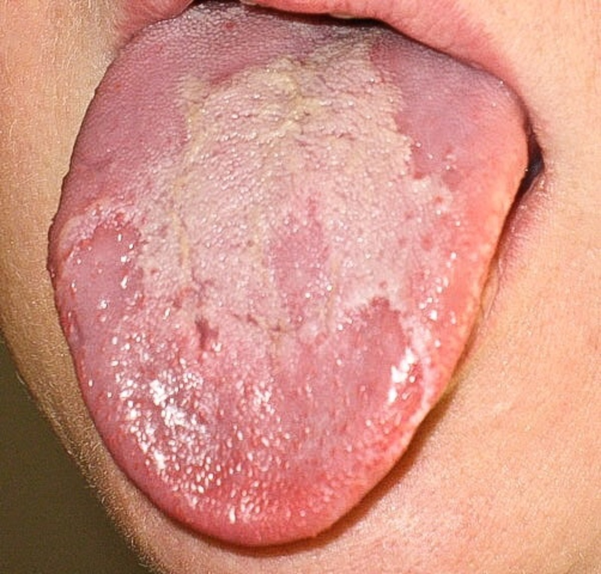 Another example of a geographic tongue