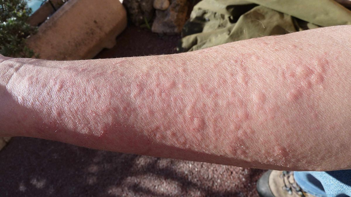 A rash of hives caused by working in contact with a pinetree.
