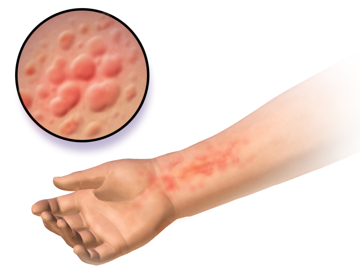 A medical illustration depicting urticaria.