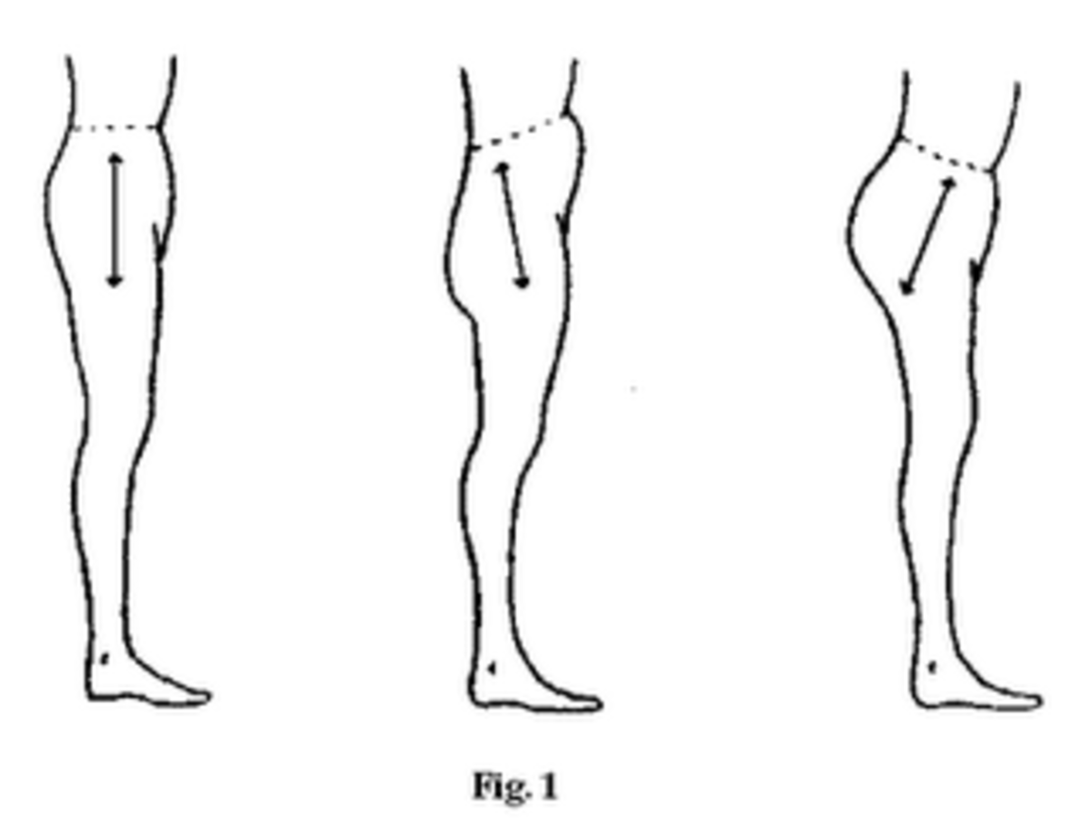 Left to Right: Neutral Pelvis, Posterior Tilt, Anterior Tilt