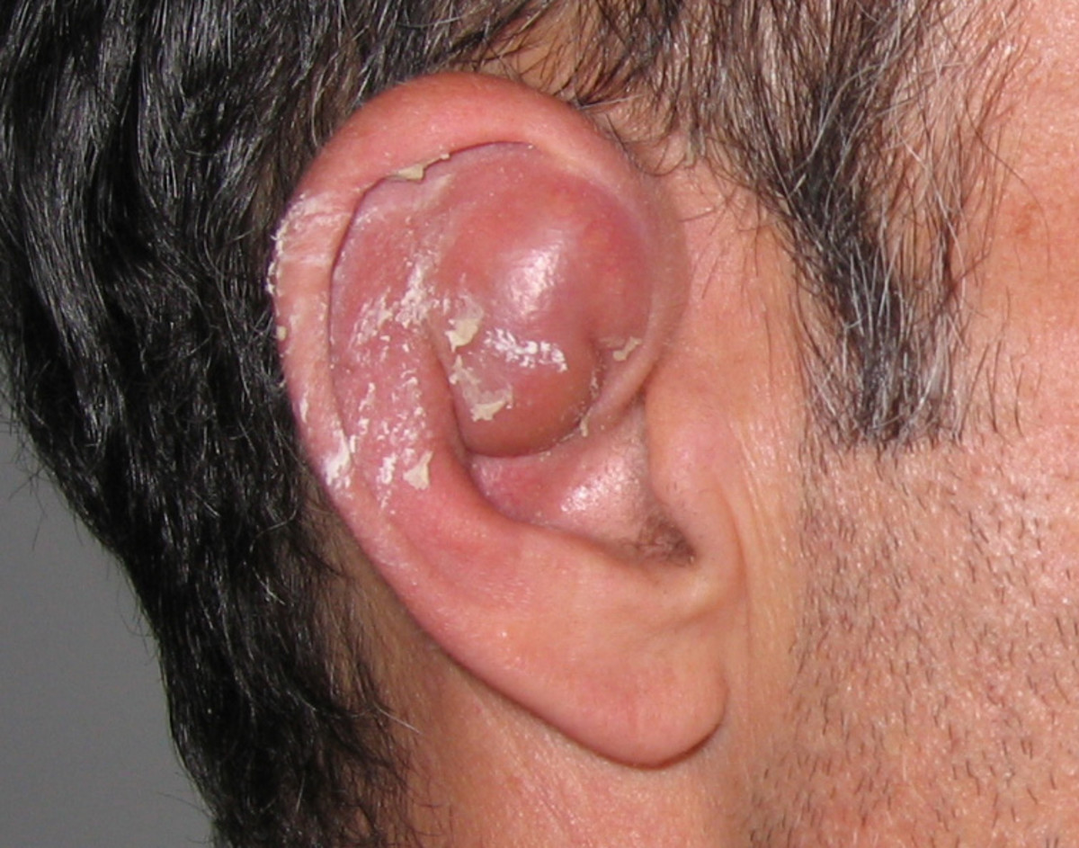 A seroma formation on the ear