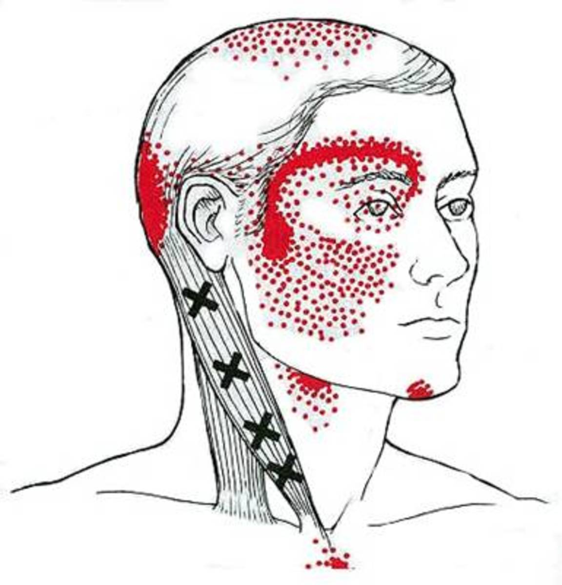 The Xs mark potential trigger points on the sternocleidomastoid muscle that is often the culprit of headaches.