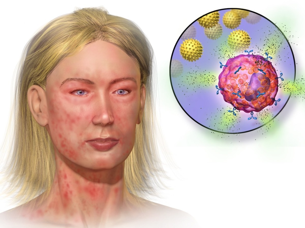 Anaphylaxis is a body-wide allergic response and is far more serious than hay fever. It also involves mast cell degranulation and histamine release, however.