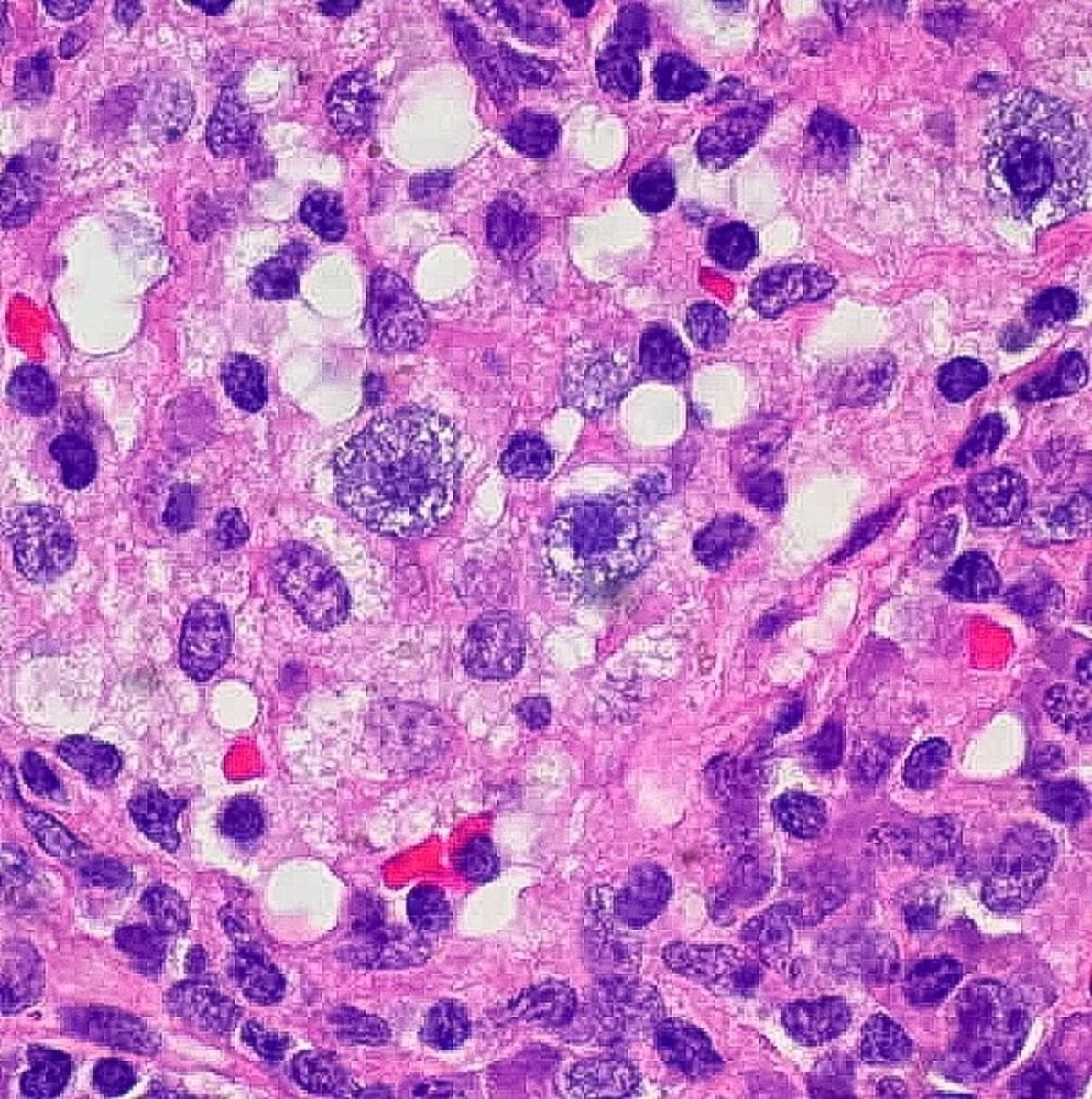 Mast cells (the granular ones with a large nucleus) in a condition called sinus histiocytosis