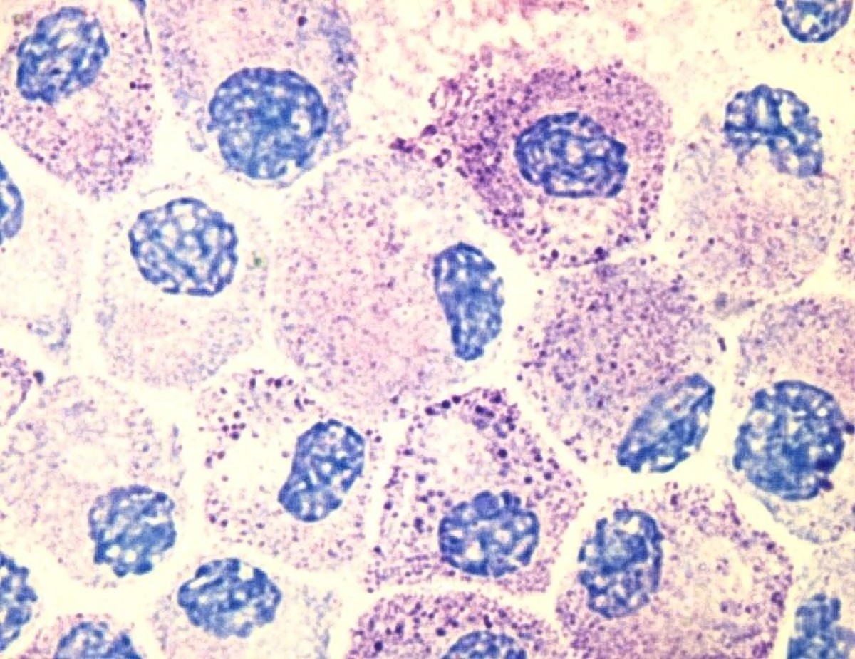 Mast cells coloured by a biological stain to show the nucleus (blue) and granules (pink and speckled areas)