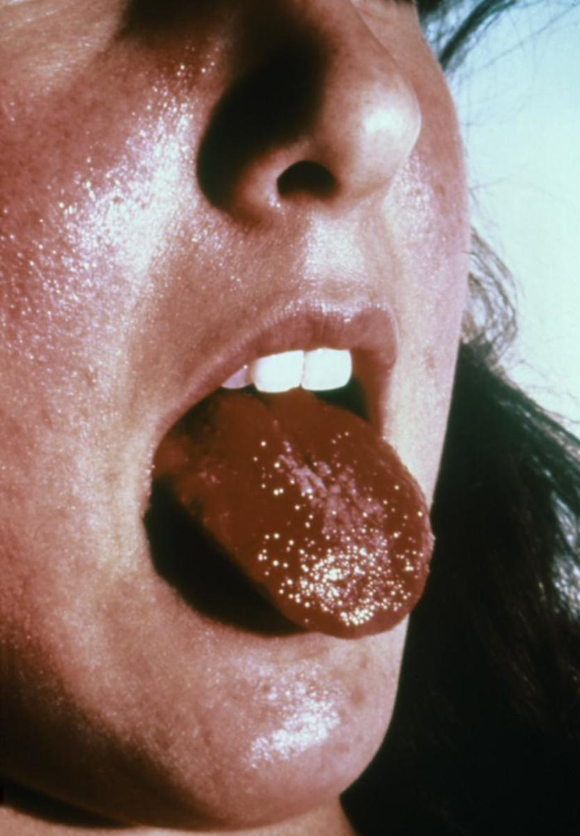 Toxic shock syndrome and strawberry tongue.