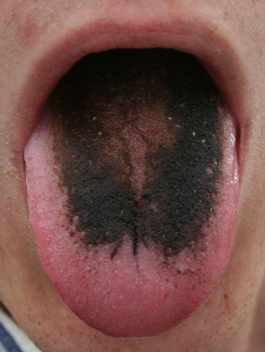 Black hairy tongue caused by tobacco use.