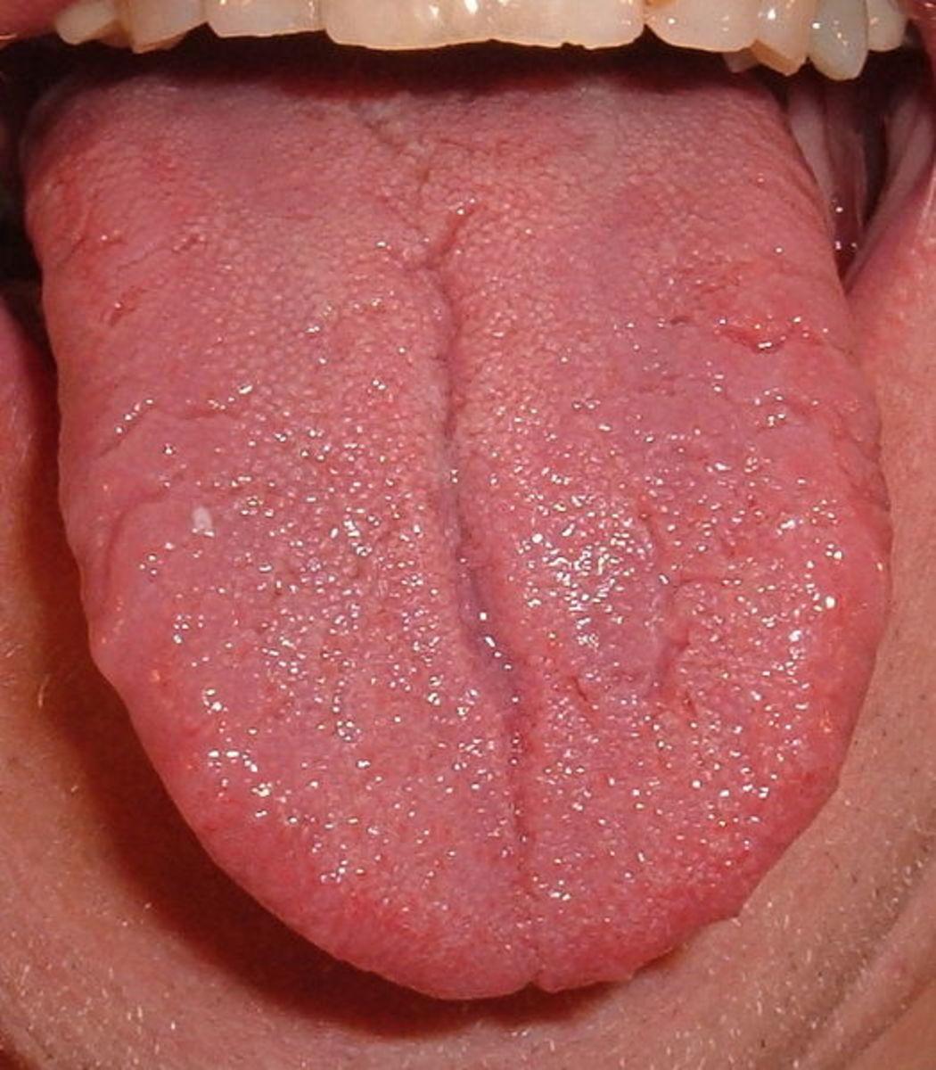 An image of a healthy human tongue.