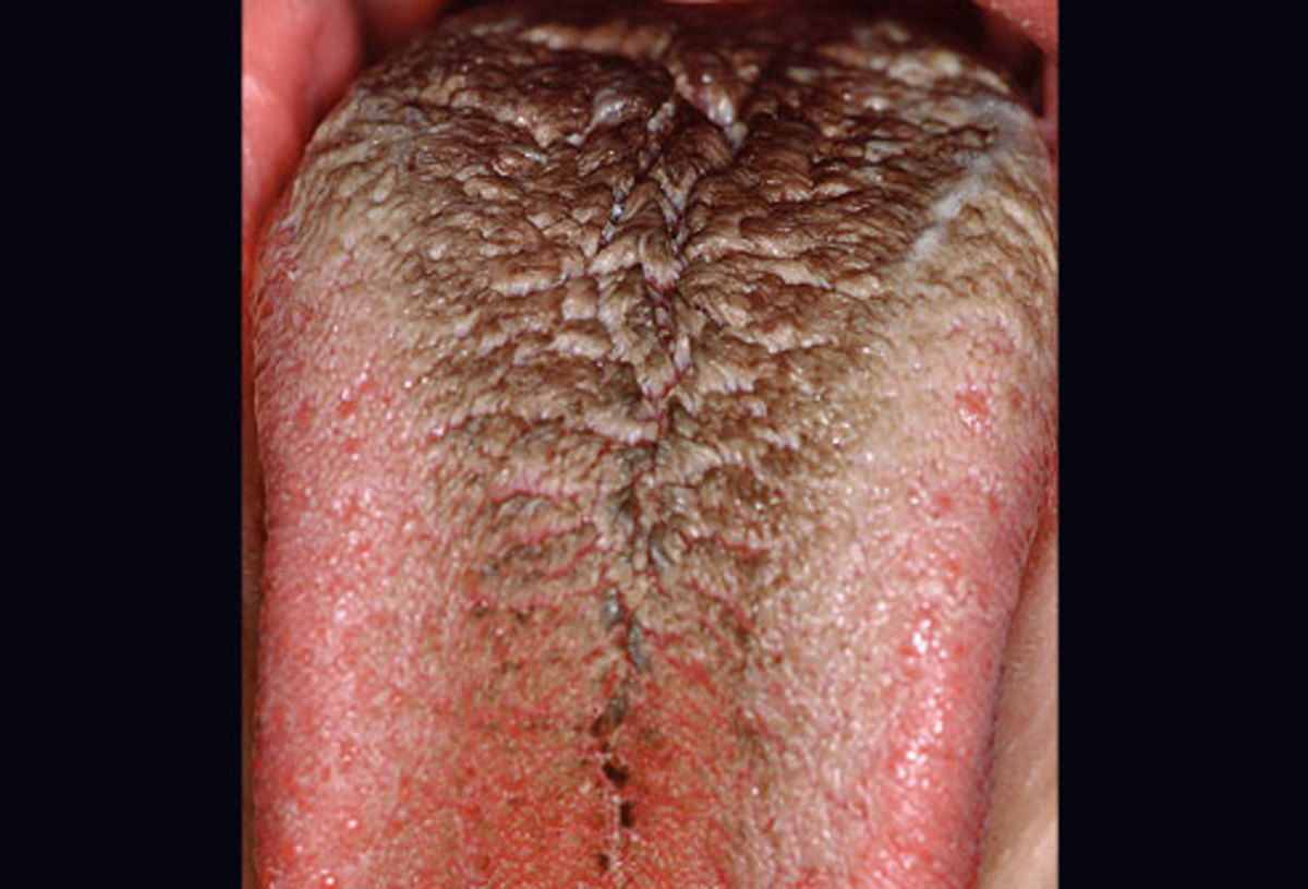 A black hairy tongue is loaded with bacteria, but usually resolves itself without treatment.