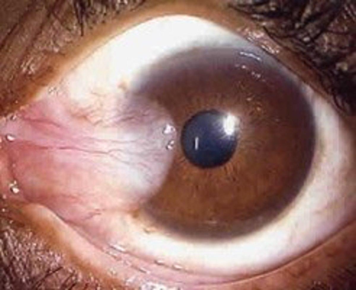 Case of Pterygium growing into the cornea