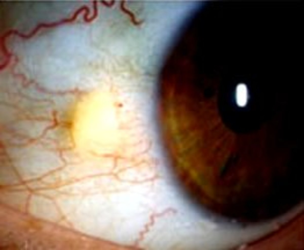 Pinguecula, a yellowing nodule that can also have some blood vessels drifting towards it.