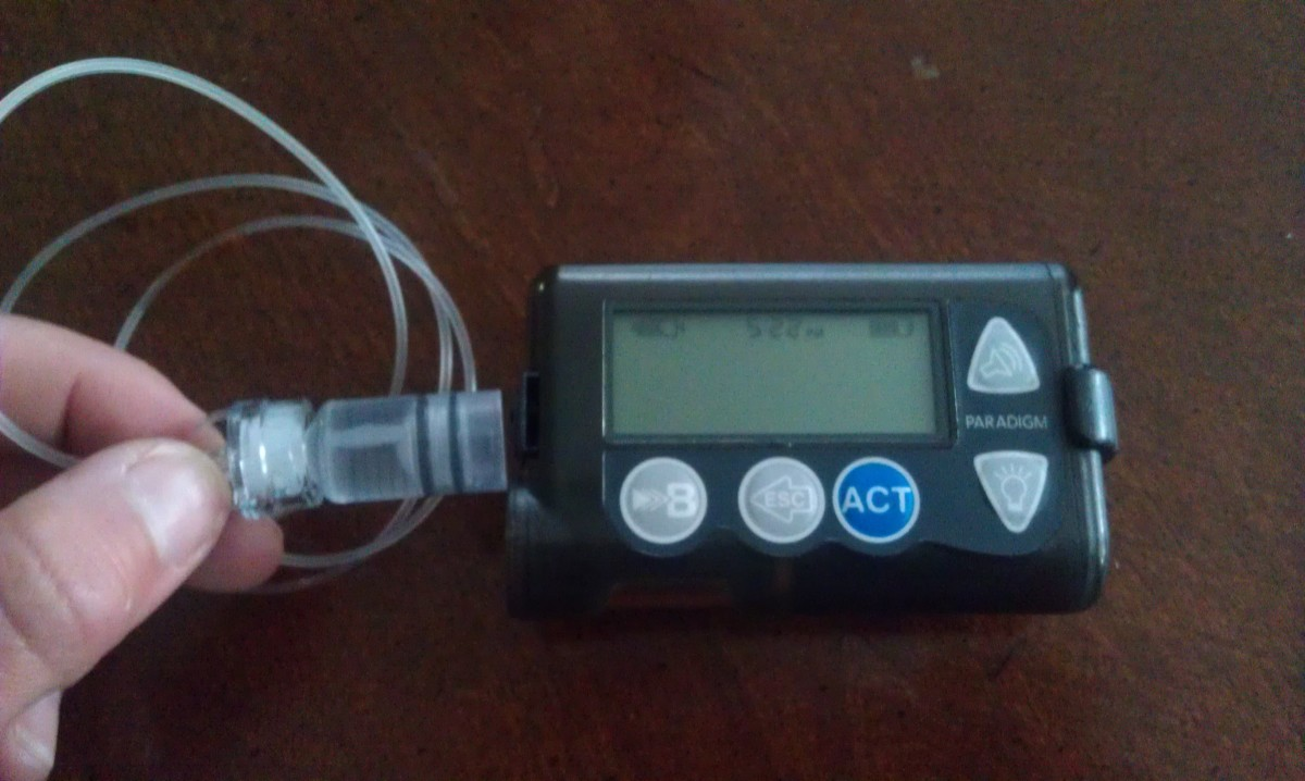 Insulin pumps can help keep diabetes in check