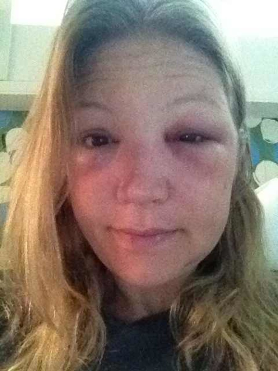 Forty-eight hours after bee sting to the eye. Began prescription medication 12 hours prior.