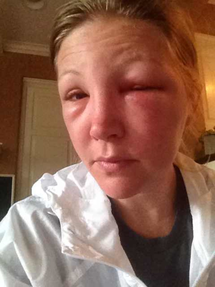 One day after bee sting to the eye. Began prescription medication 24 hours after initial sting.