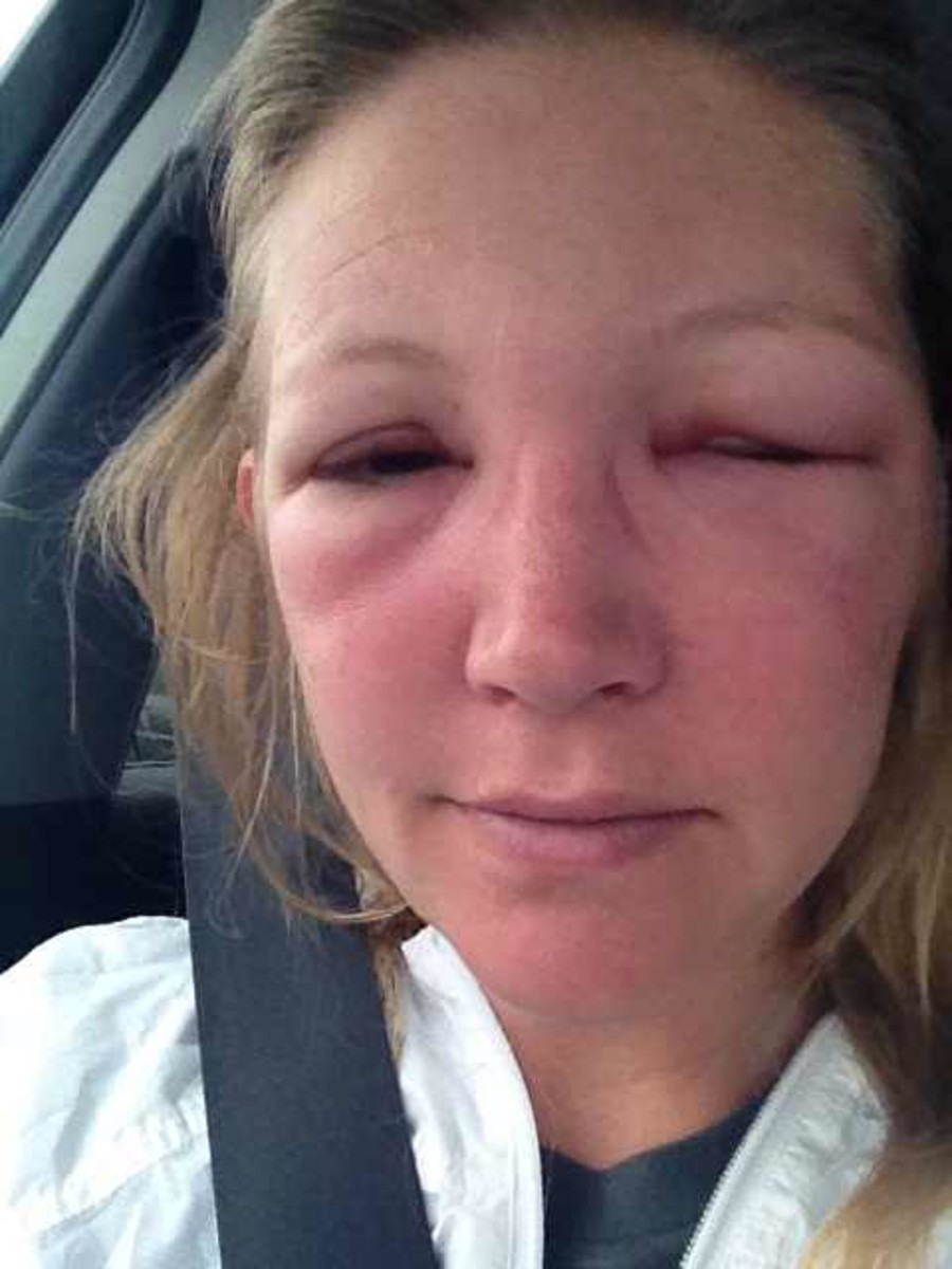 how to take down eyelid swelling