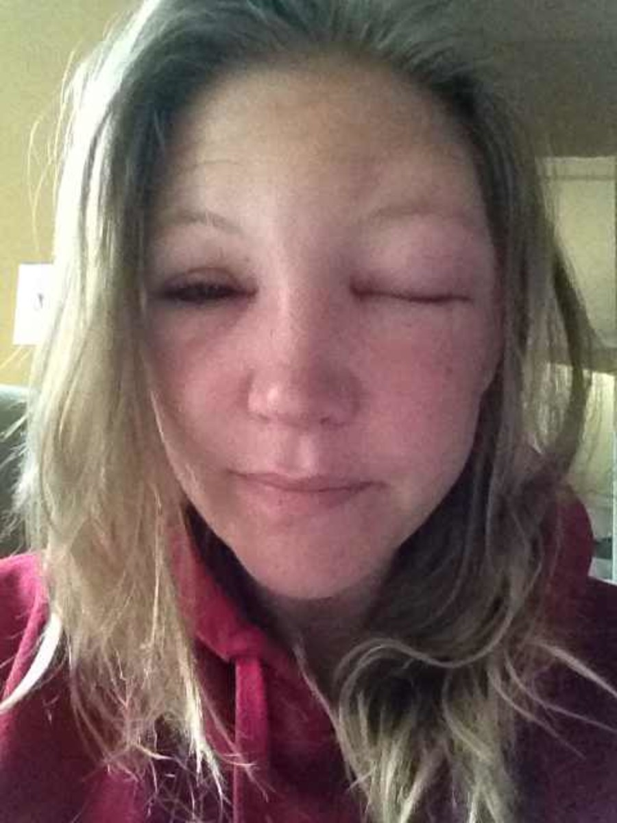 Morning after bee sting to the eyelid. One eye completely closed.  This was a scary, almost claustrophobic, feeling.  The second day was definitely the worst.