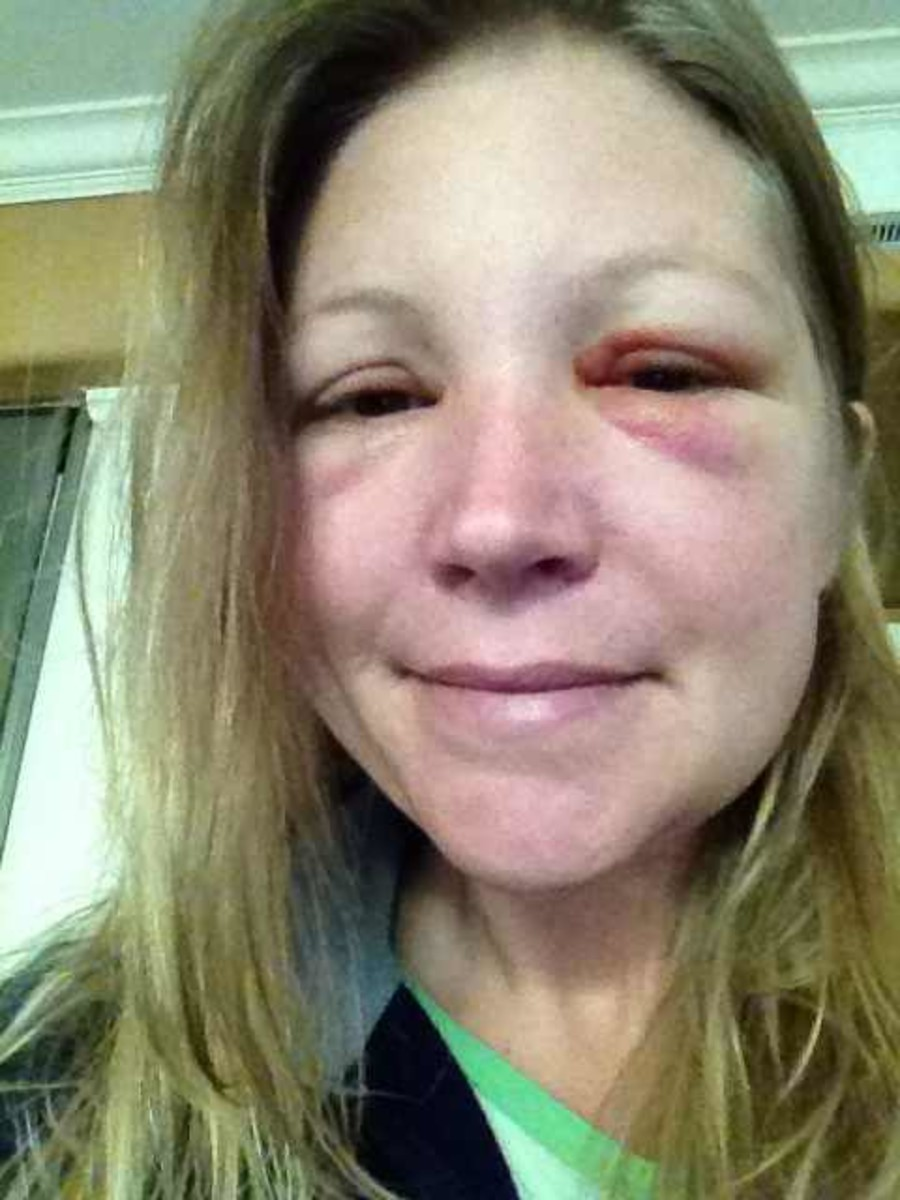 Reaction on the third day.  The bruising is more evident in this photo.