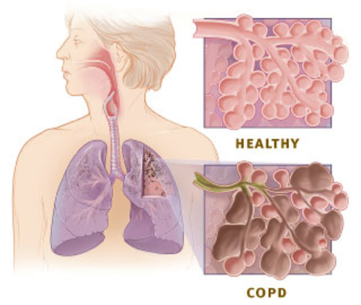 Diagram comparing a COPD lung to a healthy lung. COPD is a common result of smoking cigarettes.