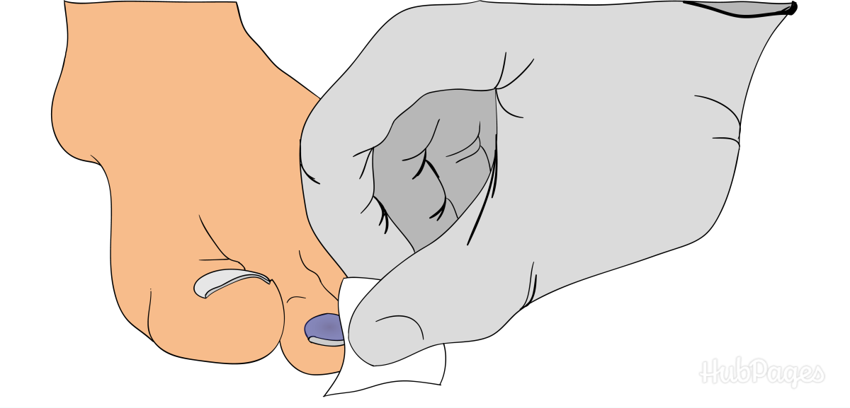 Use the alcohol pad to clean the toe with the blood blister.