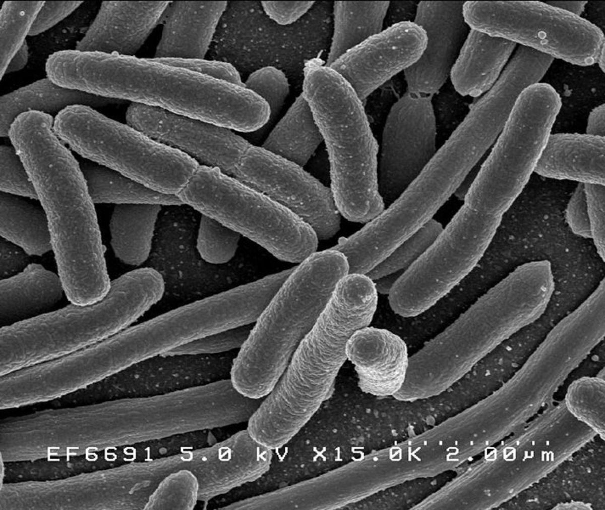 Microscopic image of E.Coli, a very dangerous germ.