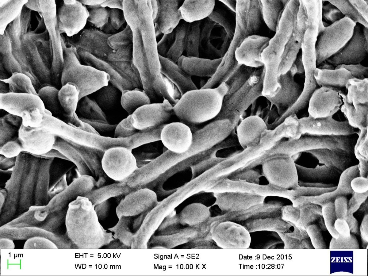 Candida albicans cells and filaments as viewed under a scanning electron microscope