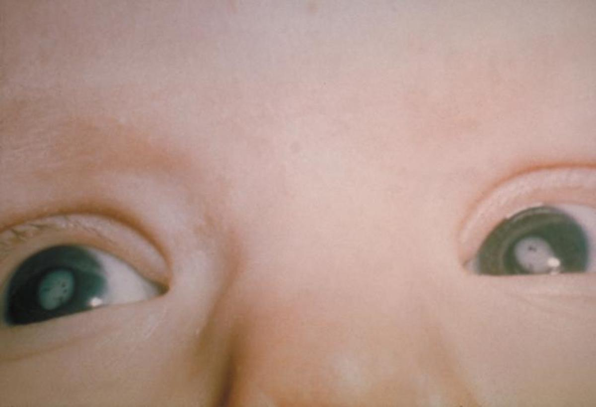 This child suffers from CRS and has severe cataracts in both eyes