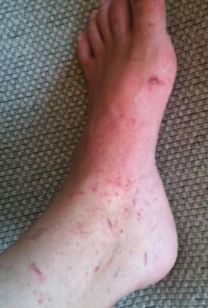 The poison oak rash on my left foot.
