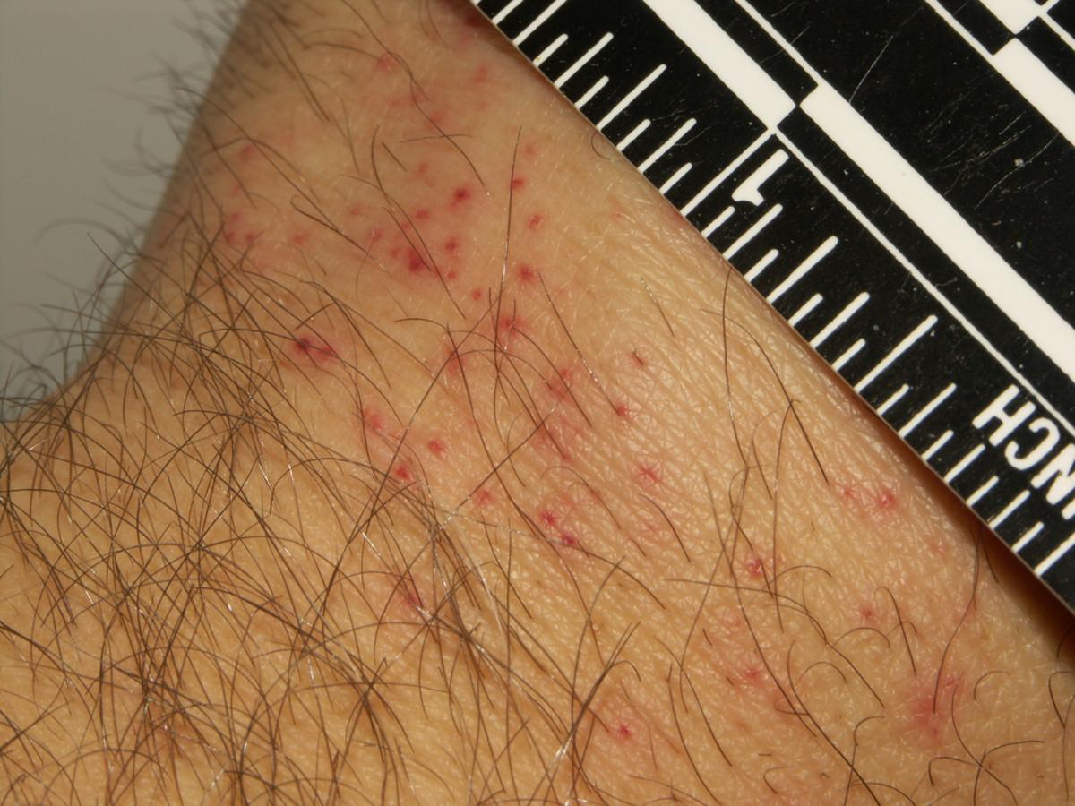 Bed bug bites: Hours after feeding.
