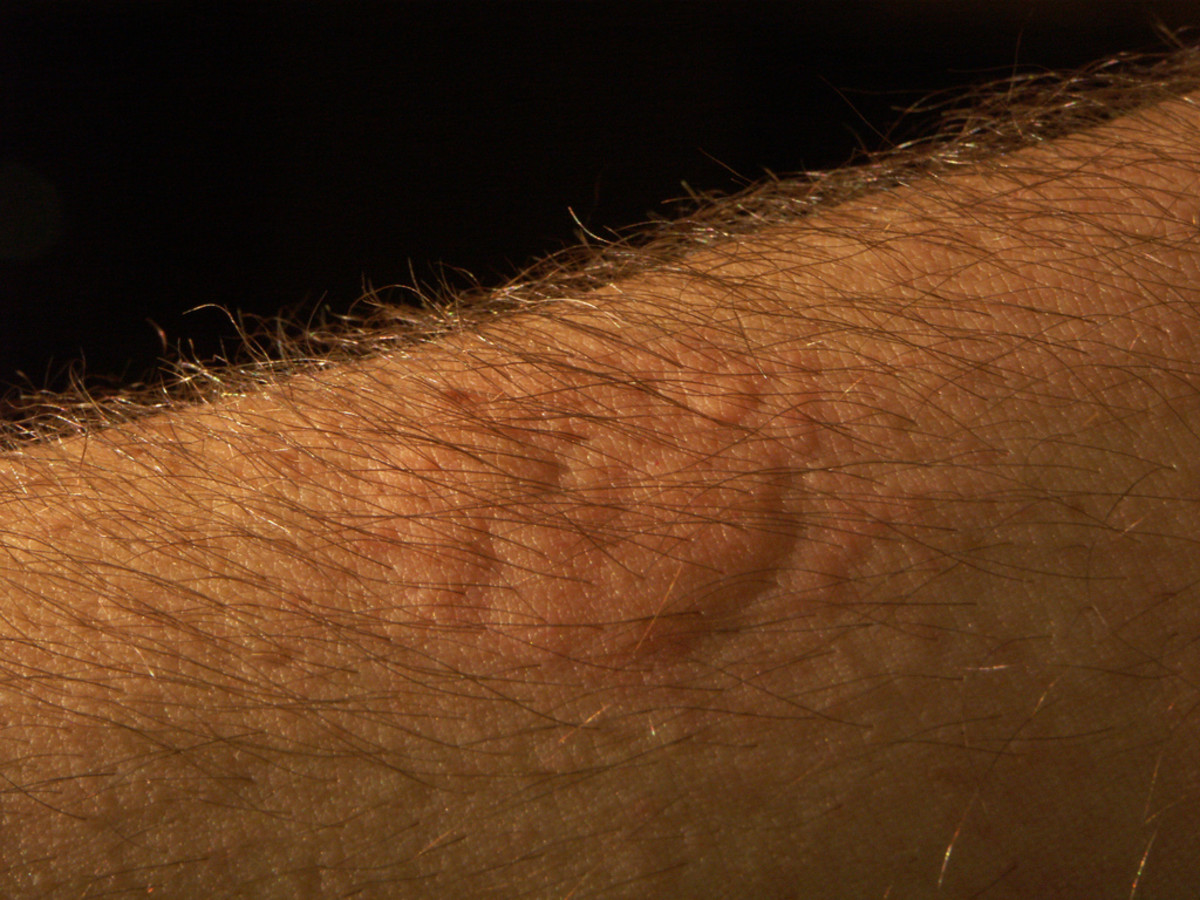 Sometimes, bed bug bites look like welts.
