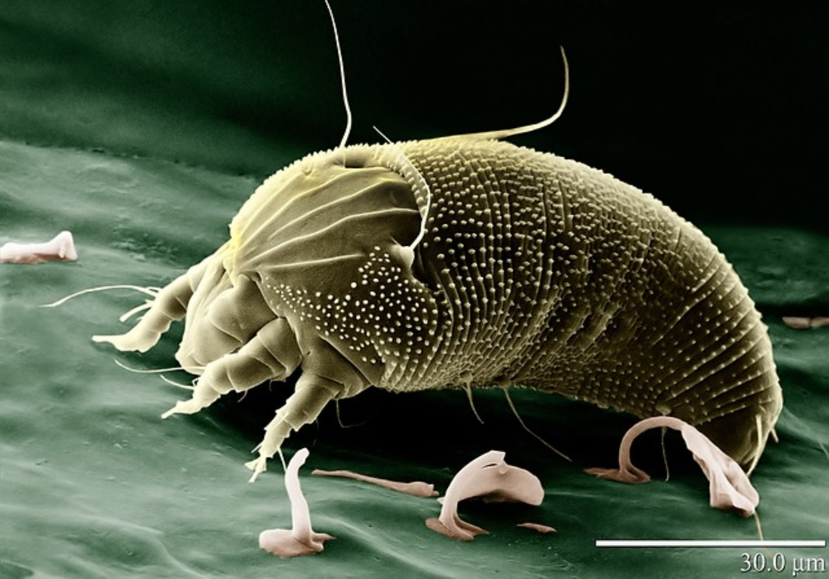 This is a greatly magnified image of a North American House Dust Mite (Dermatophagoides farinae).
