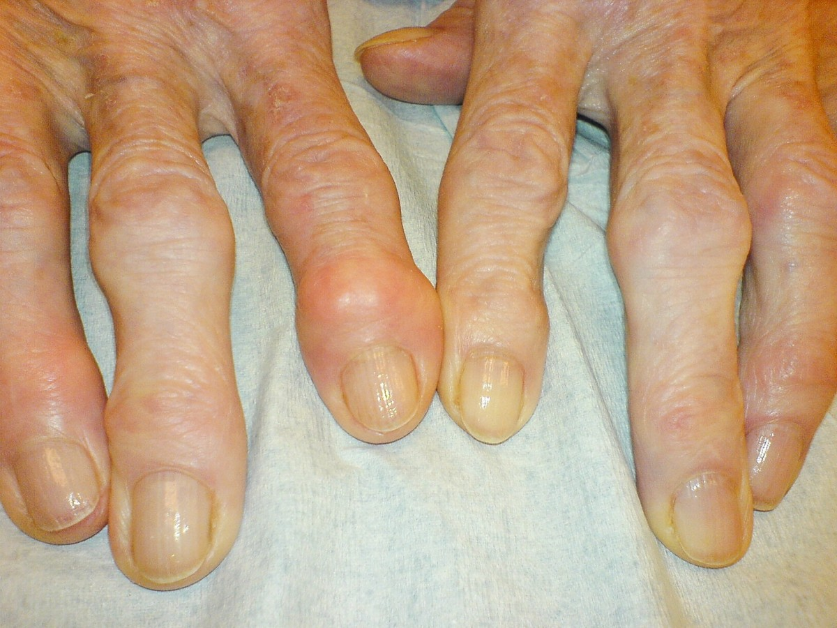 Heberden's and Bouchard's nodes, which sometimes appear in the fingers of a person suffering from osteoarthritis and may be associated with bone spurs.