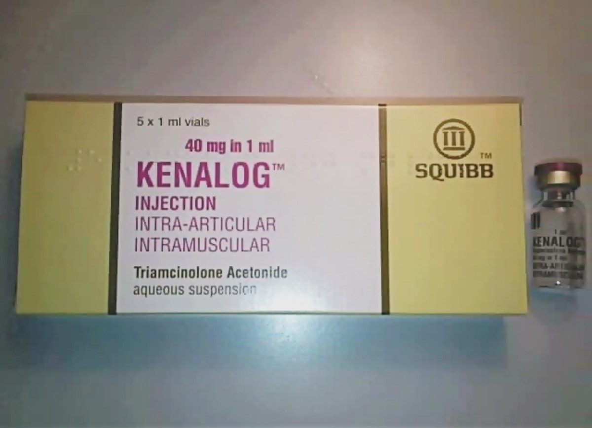 Kenalog injection