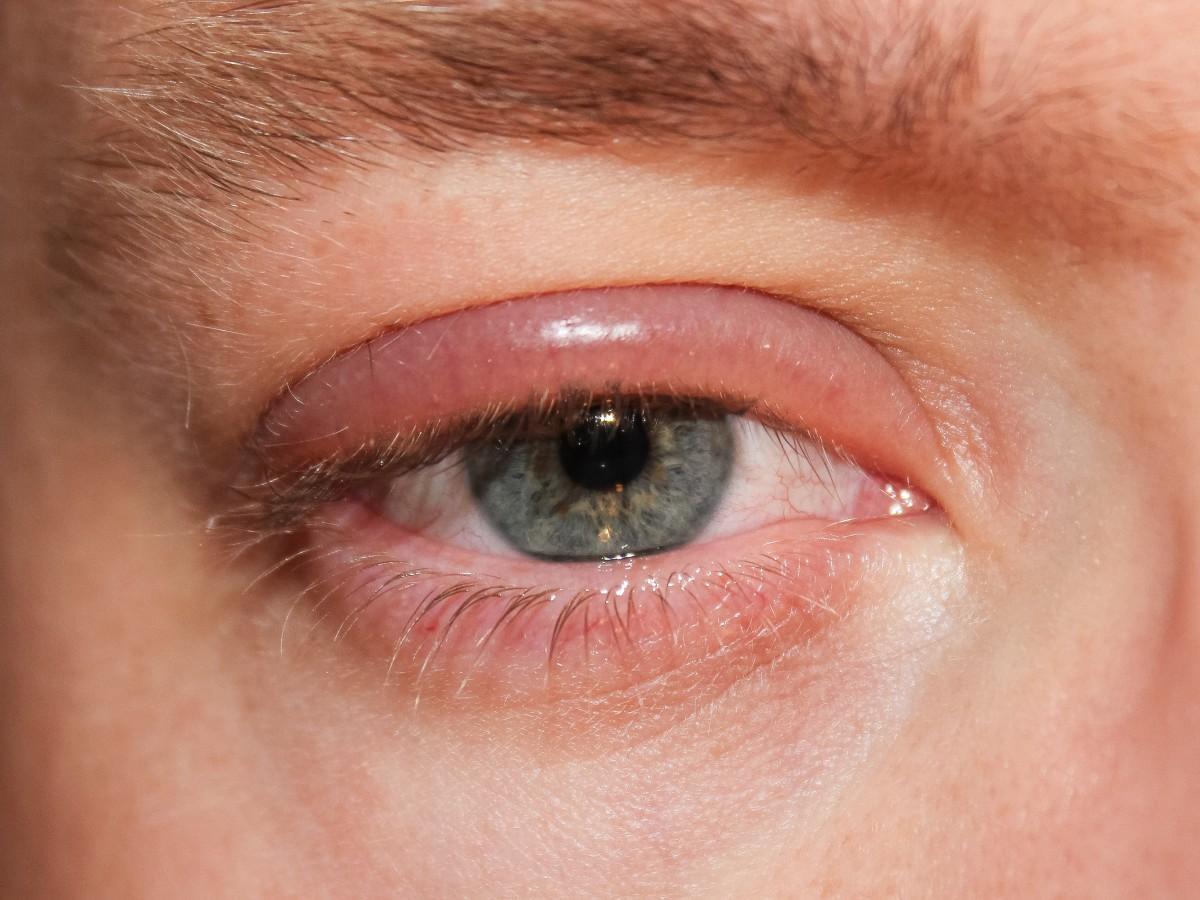 Blepharitis in an adult