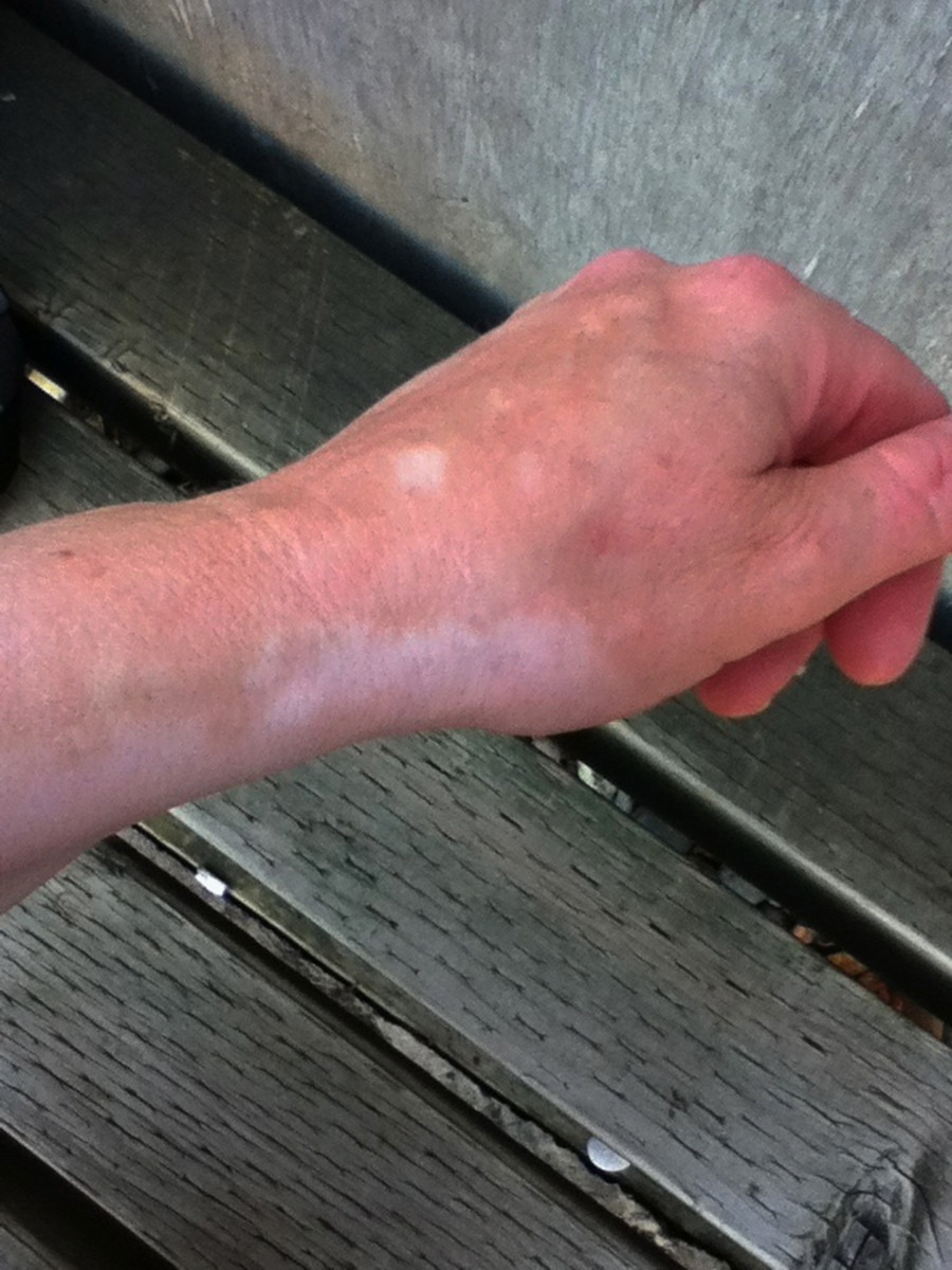 Depigmented areas on my left hand and forearm