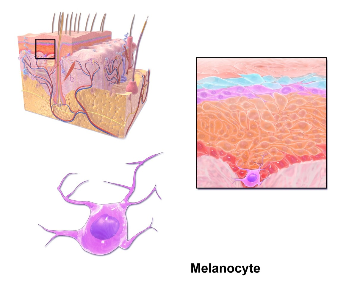 Melanocytes are cells that make melanin. Some of the cells are destroyed in vitiligo.