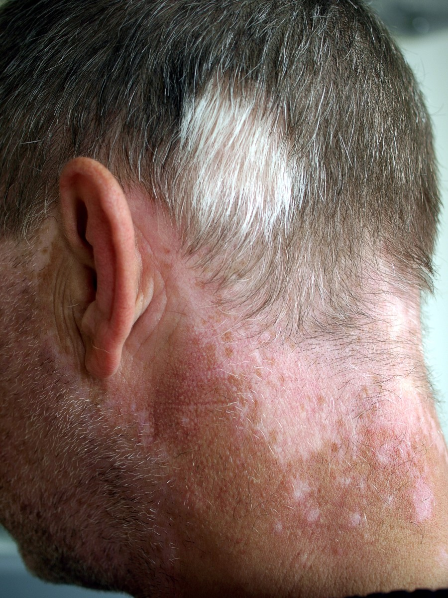 Vitiligo and poliosis (loss of pigment from hair)